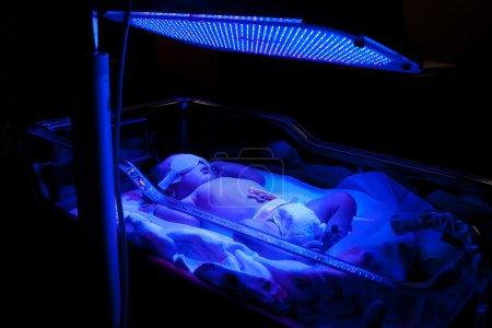 Newborn baby with neonatal jaundice and high bilir...