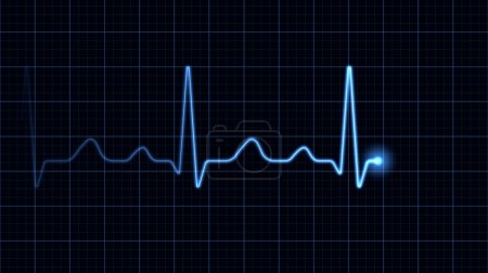 Electrocardiogram on a blue screen