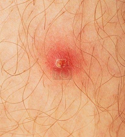 Pimple extreme on human skin. macro