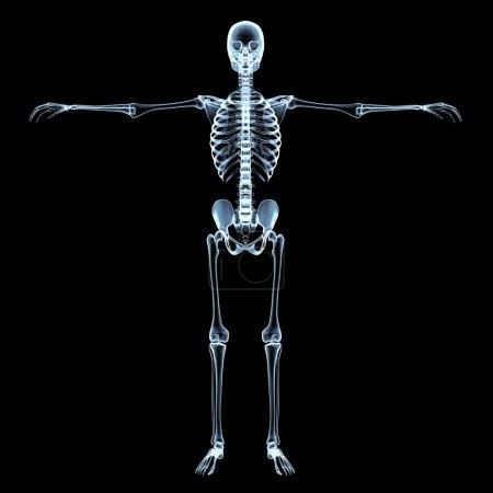 Human Skeleton X-Ray Image