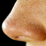 Female nose with fatty nose pores and blackheads....