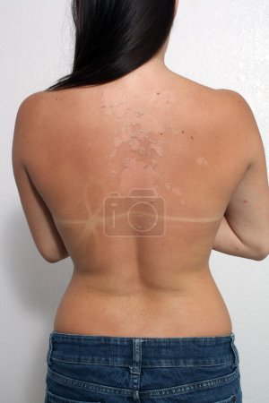 Sunburned, Peeling Female (1)