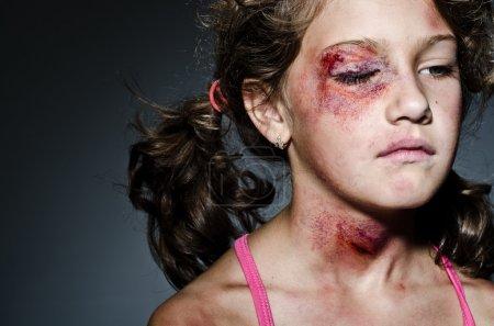 Photo pour Enfant blessé se faisant passer pour victime de violence familiale - image libre de droit