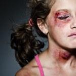 Injured child posing as victim of domestic violenc...