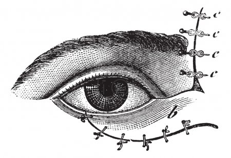 Illustration for Fig. 178. Blepharoplasty by the method of Blasius, vintage engraved illustration. Usual Medicine Dictionary - Paul Labarthe - 1885. - Royalty Free Image