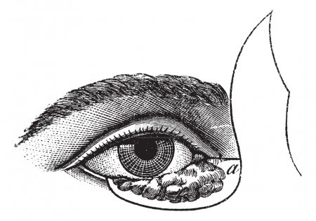 Illustration for Fig. 177. Blepharoplasty by the method of Blasius, vintage engraved illustration. Usual Medicine Dictionary - Paul Labarthe - 1885. - Royalty Free Image