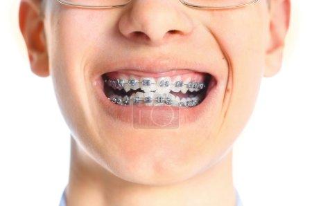 Photo pour Gros plan bouche de dent avec accolades sur fond blanc. - image libre de droit