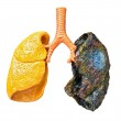 A plastic model of human lungs showing consequence...