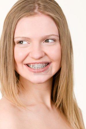 Photo pour Belle jeune fille avec des crochets sur les dents gros plan - image libre de droit