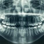 Panoramic dental X-Ray...