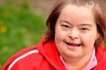 Down syndrome woman