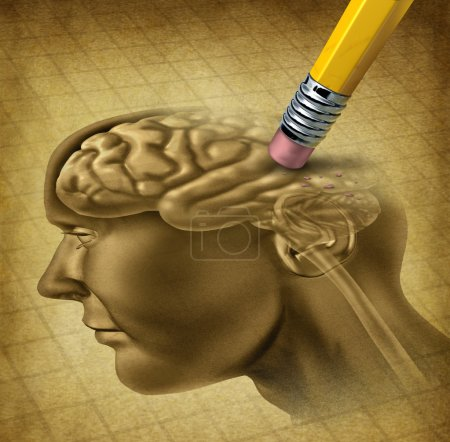 Photo for Dementia disease and a loss of brain function and losing memories as alzheimers as a medical health care symbol of neurology and mental problems with a pencil eraser removing the head anatomy on a grunge old parchment paper. - Royalty Free Image