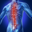 Human backache and back pain with an upper torso b...