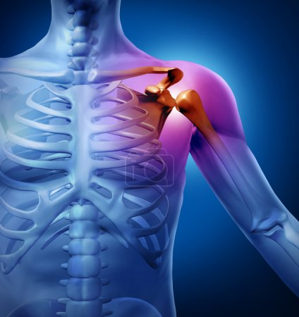 Photo for Human shoulder pain with an anatomy injury caused by sports accident or arthritis as a skeletal joint problem or as a medical health care illustration of a dia - Royalty Free Image