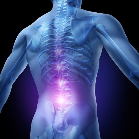 Photo for Lower back pain and human backache with an upper torso body skeleton showing the spine and vertebral column in glowing highlight as a medical health care concep - Royalty Free Image
