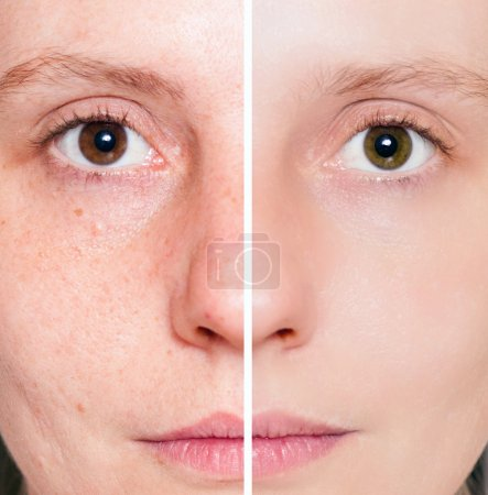 Photo for Woman with spotty skin with deep pores and blackhead and healed soft skin - Royalty Free Image