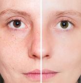 Frau mit fleckigen Haut mit tiefen Poren und Mitesser und vernarbte Haut