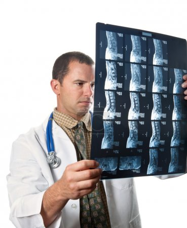 Male Doctor Examining MRI Film Scans