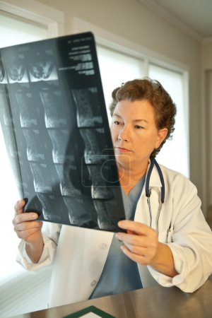 Photo for Mature woman doctor reading MRI film scans of patient's spine. Available light, short depth of field, focus on the face. - Royalty Free Image