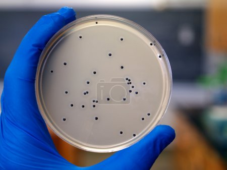 Researcher viewing colonies of bacteria growing on...