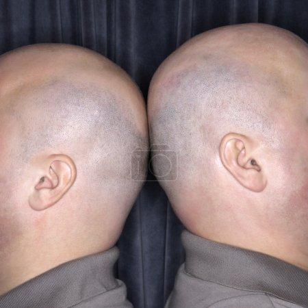 Photo pour Gros plan de Caucasiens chauves identiques jumeaux debout dos à dos . - image libre de droit