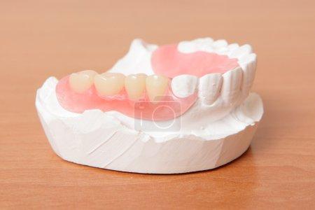 Acrylic denture (False teeth) on the table...