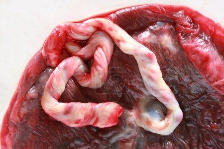 Fresh human placenta