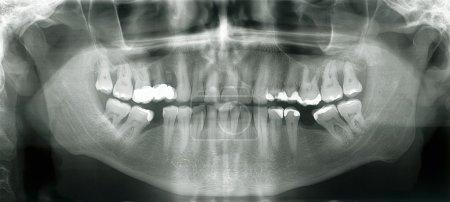Xray mouth