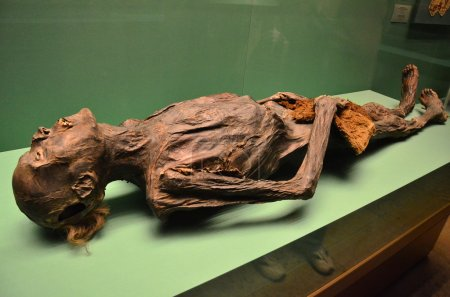 The Human Mummy