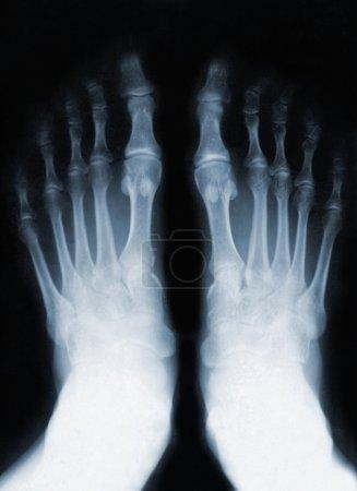 Foot fingers