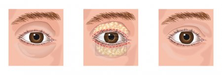 Illustration for Closeup of a surgery lifting on eye aesthetic blepharoplasty - Royalty Free Image
