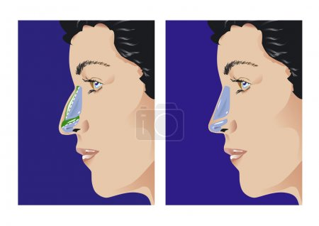 Illustration for Schematic sketch of rhinoplasty. Elements are on a separate layer and can be easily removed. Gradients only (no transparencies) - Royalty Free Image