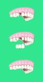 Dental prosthesis intervention